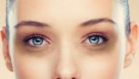 Göz altı Halkalarını Kapatmanın Akıl Almaz Yolu
