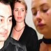 Serdar Ortaç'ın Eşi Chloe Loughnan Dayak mı Yedi