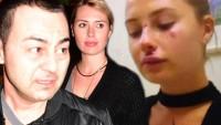 Kaza Sonrası Serdar Ortaç'ın Eşi Chloe Bu Hale Geldi