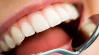Kanal tedavili diş ağrı yapar mı?
