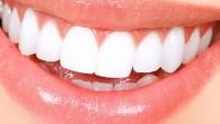 Dişlere sürerseniz bembeyaz yapıyor!