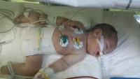 Doğumhanede kan donduran olay! Bebeğin kafasını görünce geri itti!